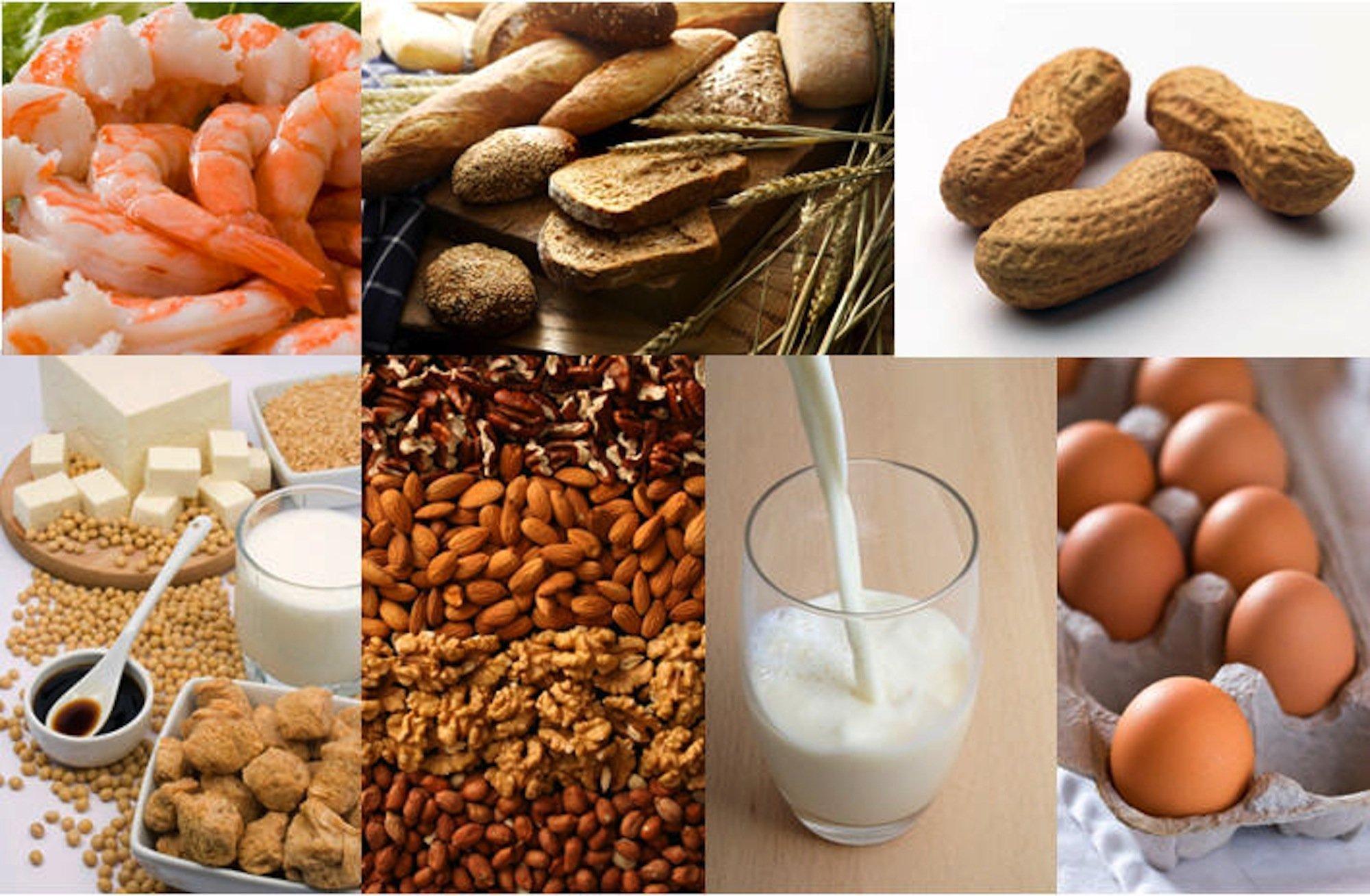 Intolerancias alimentarias by Bionutrición Ortomolecular